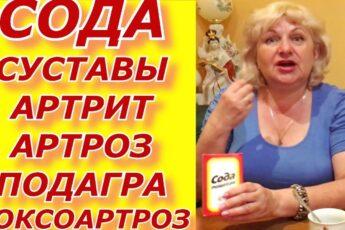 СОДА- СУСТАВЫ АРТРИТ АРТРОЗ ПОДАГРА КОКСОАРТРОЗ