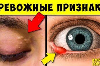Серьёзные признаки Опасных заболеваний по Глазам! Не Игнорируй их...