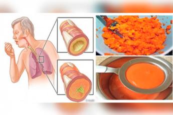 Древний домашний рецепт сиропа, который удаляет мокроту из легких и излечивает от кашля!