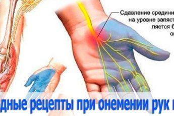 Народные рецепты против онемения рук и ног