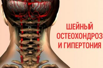 Гипертония и инсульт — последствия шейного остеохондроза! Это можно предотвратить выполняя лечебный комплекс!