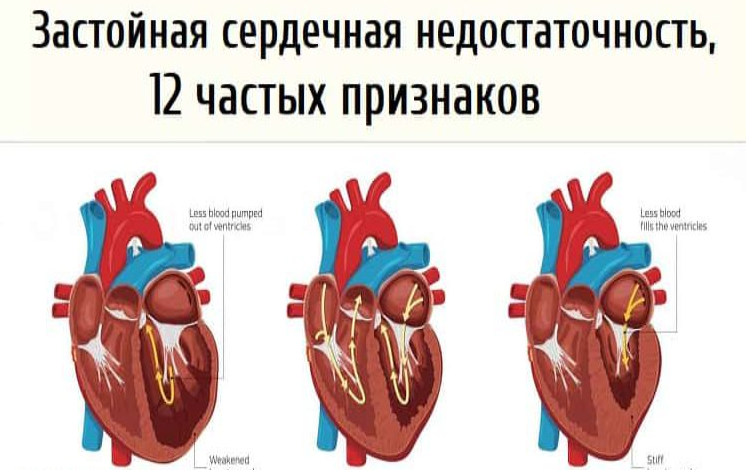 Застойная сердечная недостаточность, 12 частых признаков