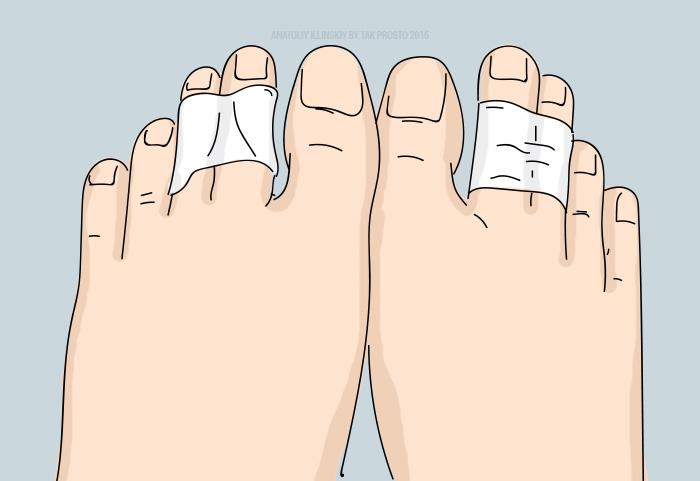 Она обмотала пальцы на ногах лейкопластырем. Узнав силу этого приема, делаю так всегда