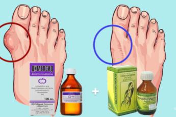 Этот рецепт от медсестёр поможет вам за копейки убрать косточку на ноге
