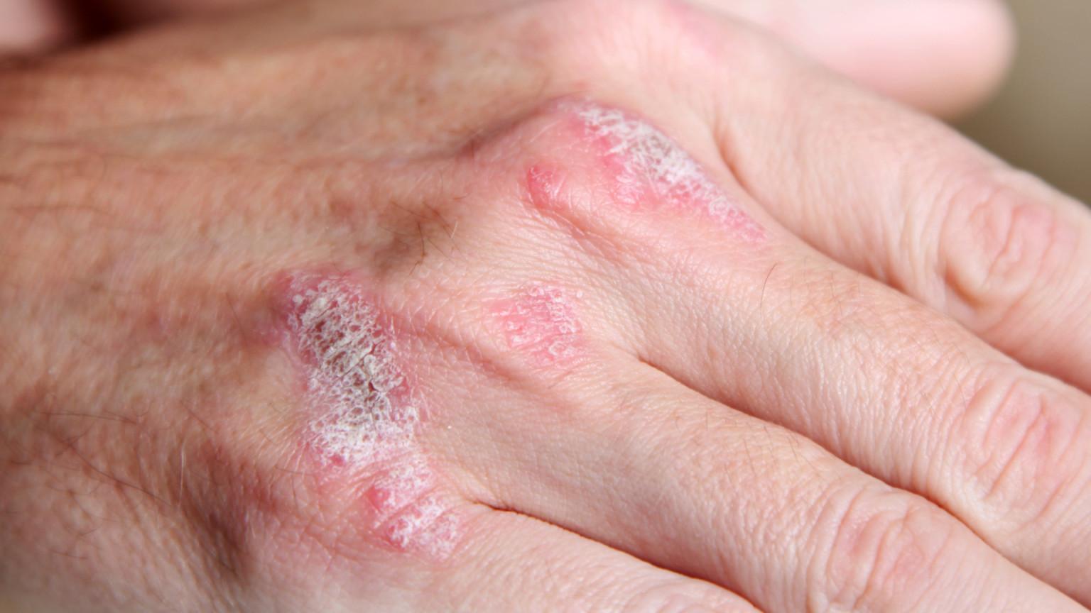 5 народных средств для лечения псориаза