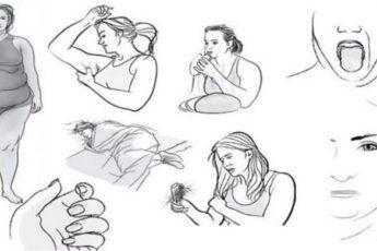 8 признаков дисфункции щитовидной железы, которые вы игнорируете каждый день